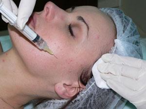 Методы проведения мезотерапии