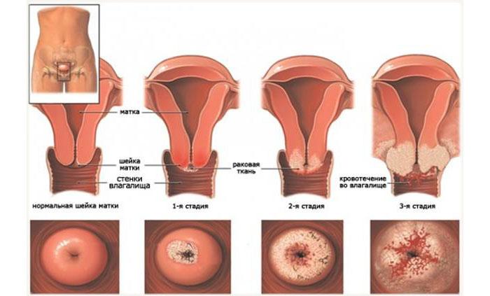 Чувствительная шейка матки