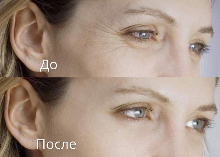 Лечение кожи вокруг глаз