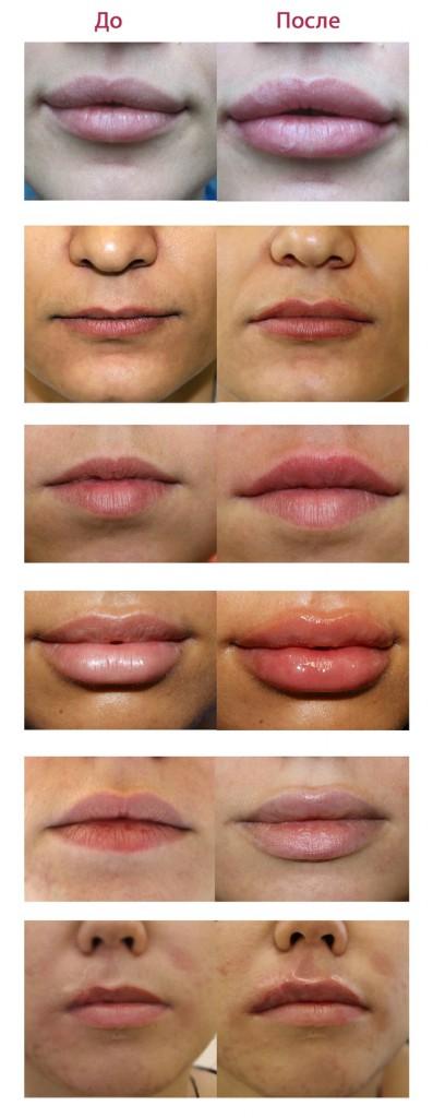 Увеличение губ гиалуроновой кислотой дома