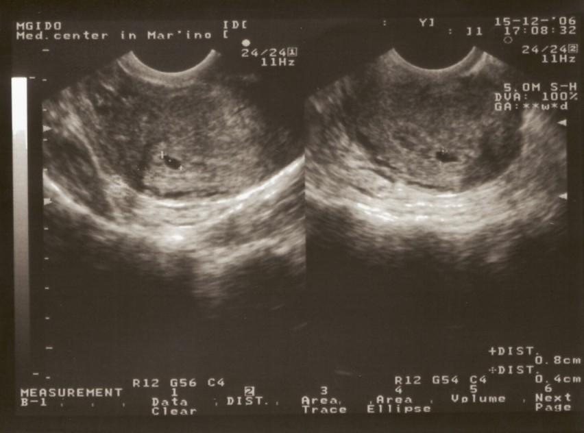 Фото беременность 4 недели