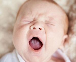 Причины белого налета на языке у младенца