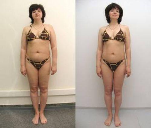 Фотографии до и после кремлевской диеты