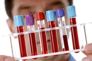 Общий анализ крови ребенка