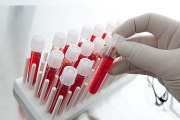 расшифровка анализа крови у ребенка