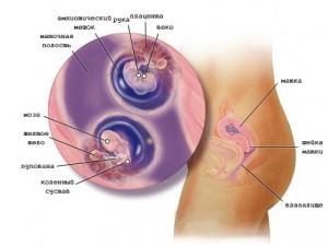 Беременность двойней у женщины