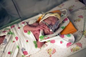 Как развиваются глубоко недоношенные дети